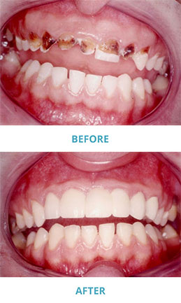 A Picture Of Teeth Before And After Dental Crowns