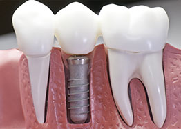 A Dental Implant at Smile First Chicago
