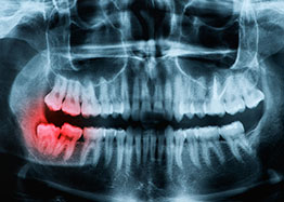 A Wisdom Teeth Extraction at Smile First Chicago