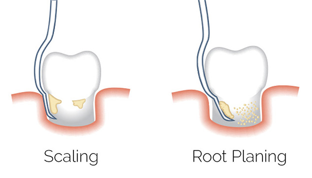 An Image Of Scaling And Root Planing